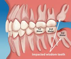 An illustration of wisdom teeth that are impacted, threatening the health of other nearby teeth. Tooth extractions in Springfield, VA.