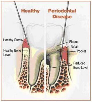 An illustration of the difference between healthy gums and periodontal disease. Periodontal treatment in Springfield, VA.