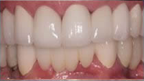 Implant Bridge and Porcelain Veneer - After