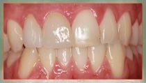 Porcelain Crowns - After