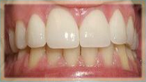 Combination of Porcelain Crowns and Porcelain Veneers - After
