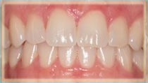 Invisalign Case - After