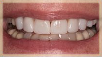 Porcelain Veneers - After