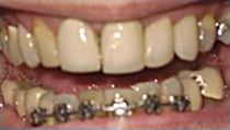 Implant Bridge and Porcelain Veneer - Before
