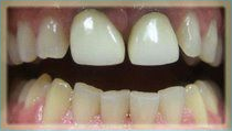 Combination of Porcelain Crowns and Porcelain Veneers - Before