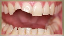 Porcelain Crowns - Before