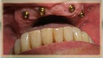 Overdenture Case - Before