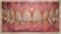 Porcelain Veneers - Before