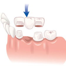 An illustration of a dental bridge. Cosmetic and restorative dentistry in Springfield, VA.