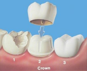 An illustration of a dental crown. Restorative dentistry in Springfield Lorton Dental Group, VA.