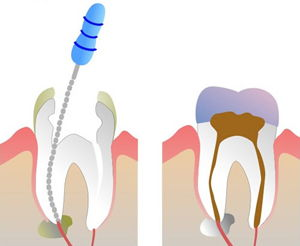 An illustration of root canal treatment. Springfield Lorton Dental Group performs root canal treatment with the highest level of expertise.
