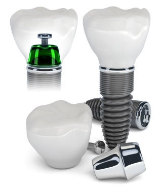 A graphic of a dental implant construction. Artifical tooth replacements in Springfield, VA.