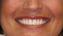 Veneers - Post Op - Before