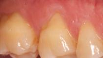 before gum grafting