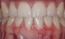 after gum grafting